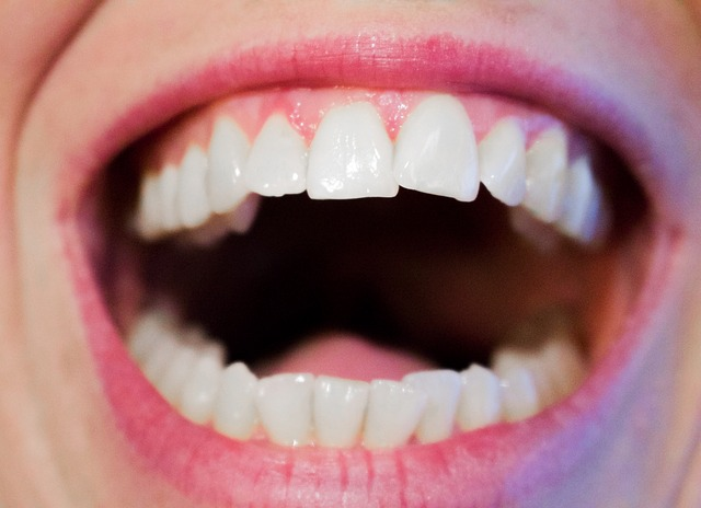 Die 6 wichtigsten Kräuter für die Mundhygiene